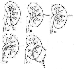 Нефростомия. Типы нефростомических катетеров.