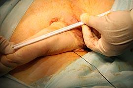 половые органы после перемены пола фото функциям Основные